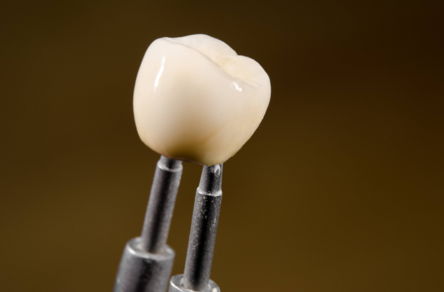 Dental Crown | Wellington FL