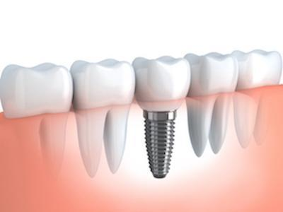 Illustration of dental implant in tooth