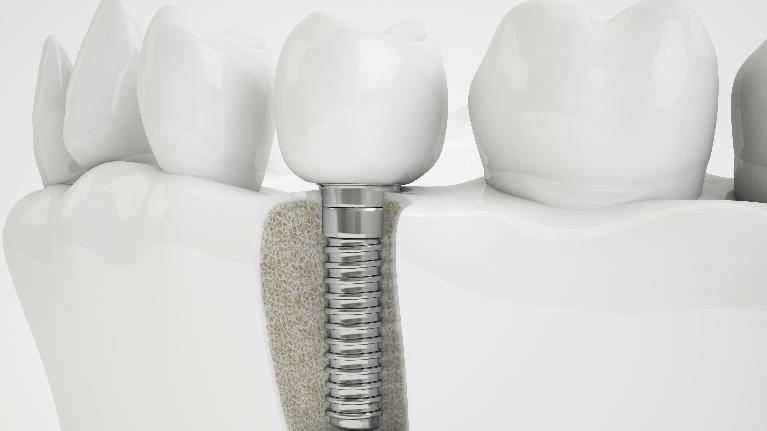 Dental Implants | Affordable Dental Center of Wellington