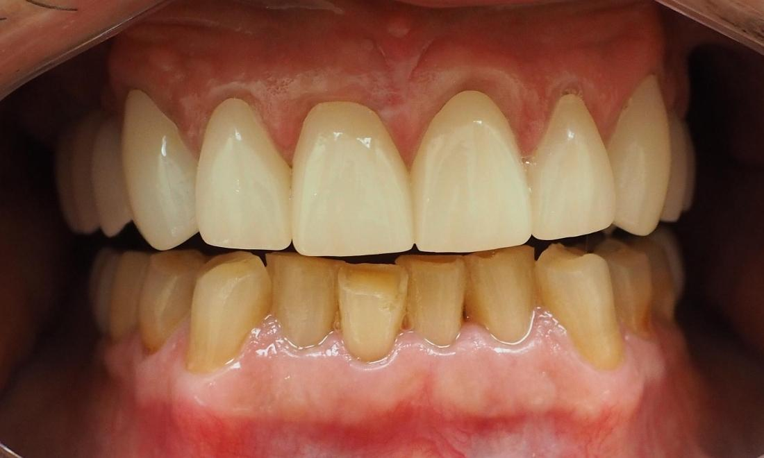 Porcelain crowns used to reconstruct worn front teeth