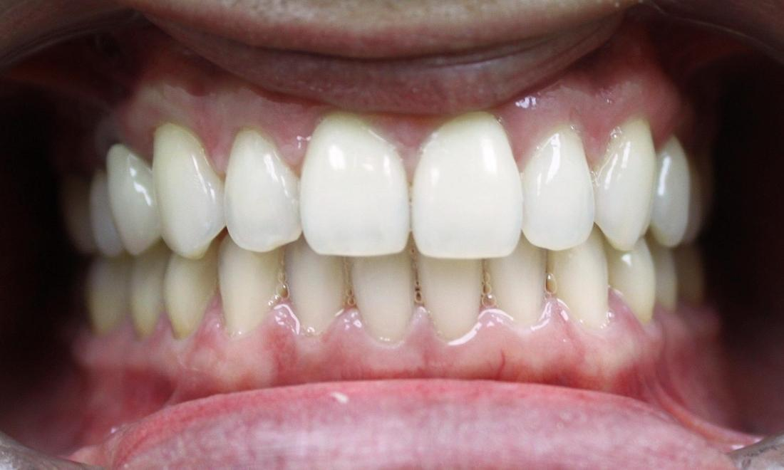 After Photo | Clear Correct Orthodontics Royal Palm Beach