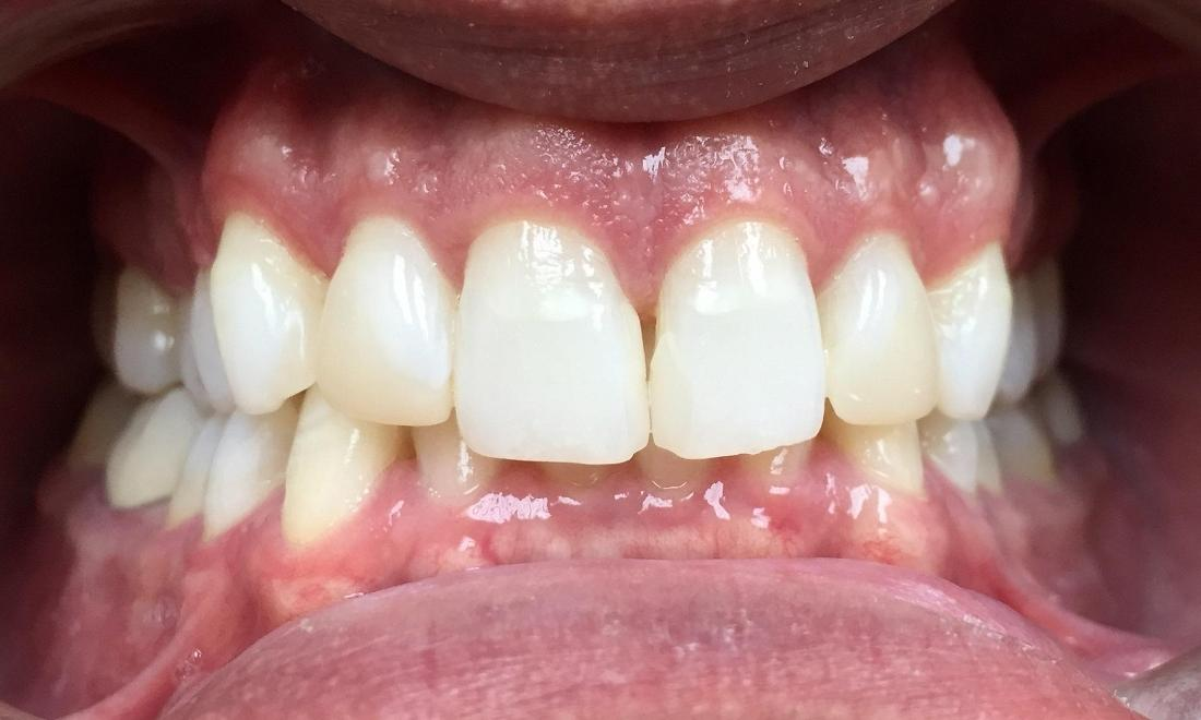 stained smile whitened with professional teeth bleaching