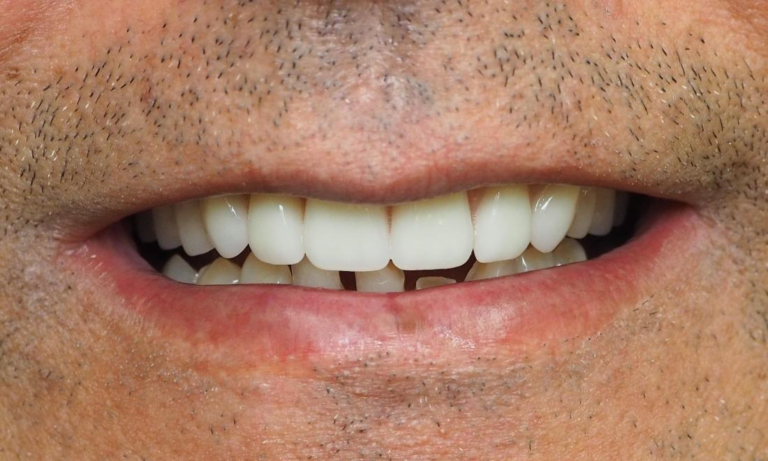 After photo for man with full top dentures
