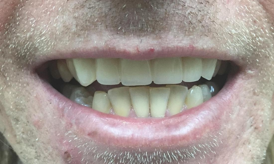 After | Root Canal Treatment | Bridges Royal Palm Beach
