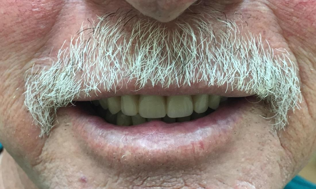 After | Dentures Royal Palm Beach | Dentist