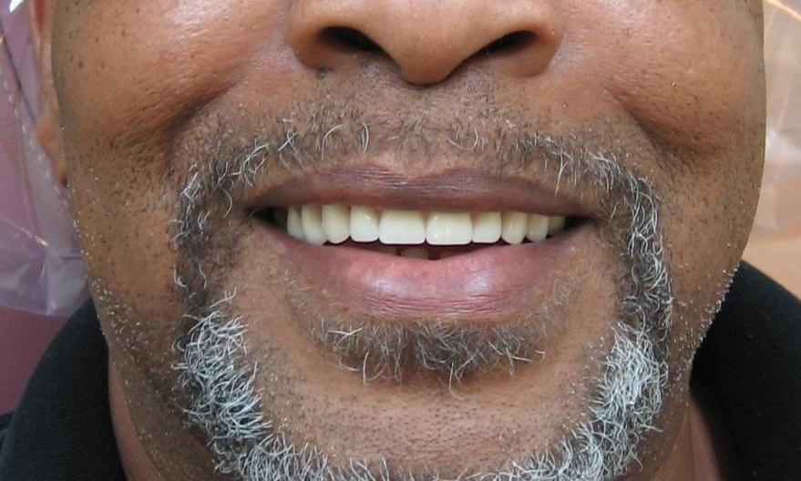 Same-day dental implants to replace missing upper teeth
