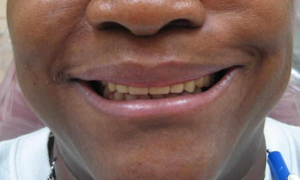 Same-day dentures on upper and lower teeth