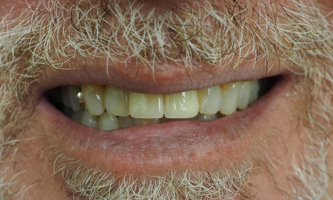 Close up of two front teeth after dental implants
