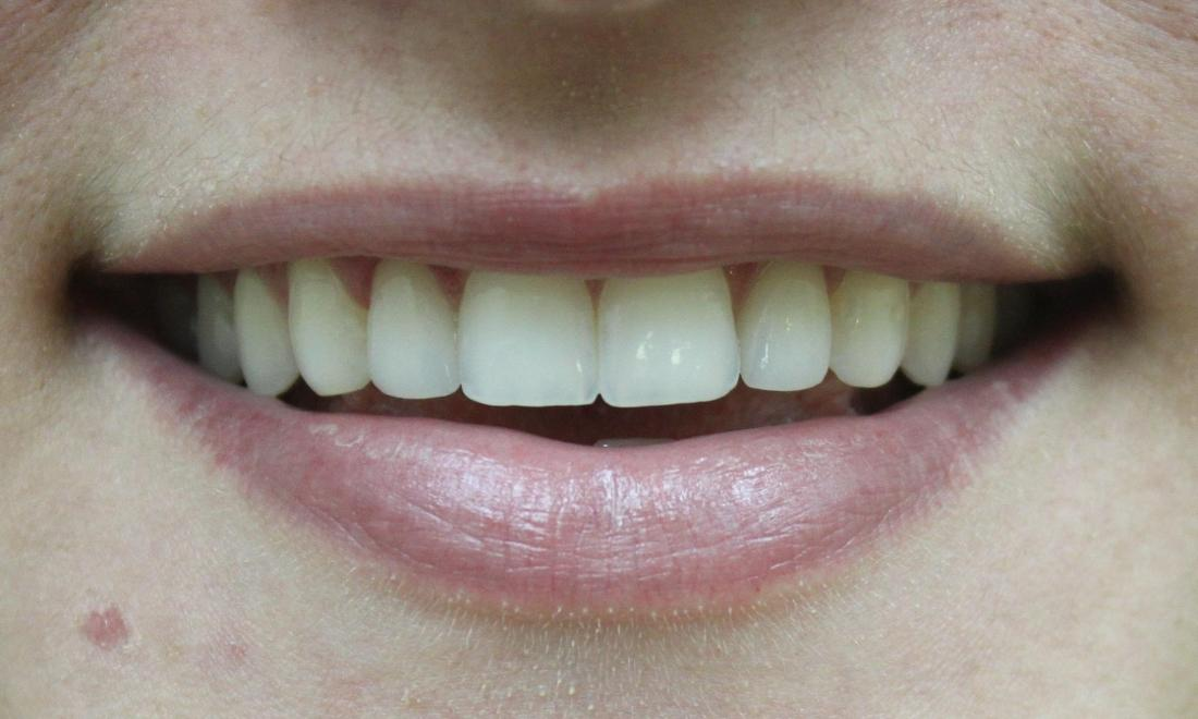 Close up of top teeth with new porcelain crowns