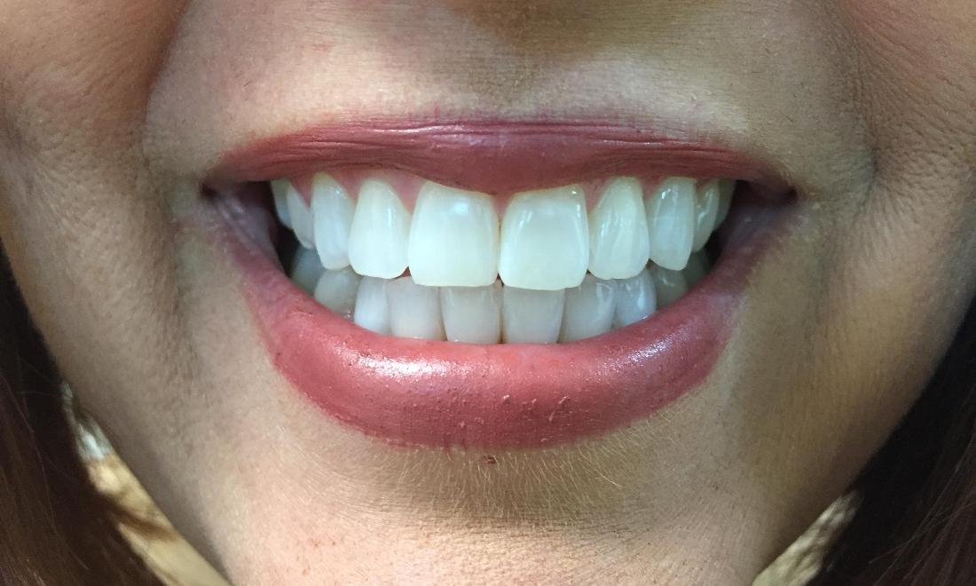 Bright and white teeth after teeth whitening