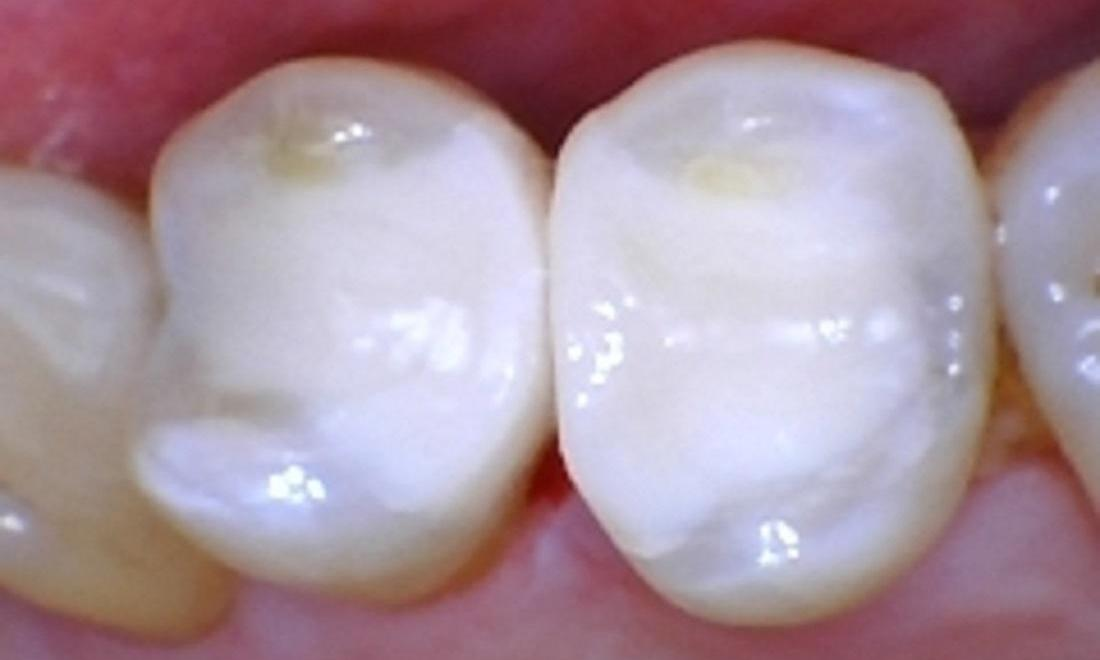 New white fillings