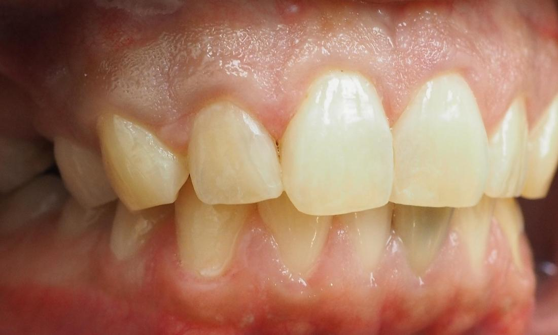White fillings to repair cavities on front teeth