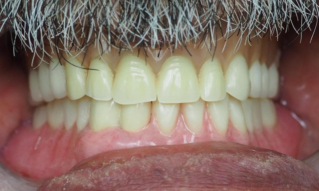 lower denture to replace missing teeth