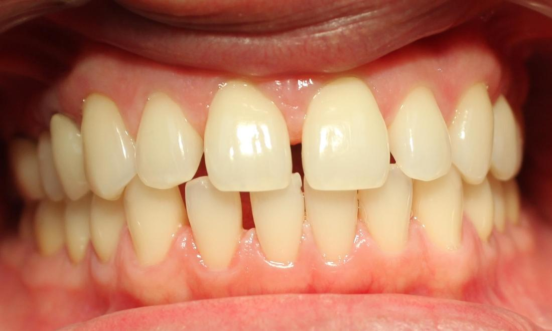 Before Photo | Clear Correct Orthodontics Royal Palm Beach