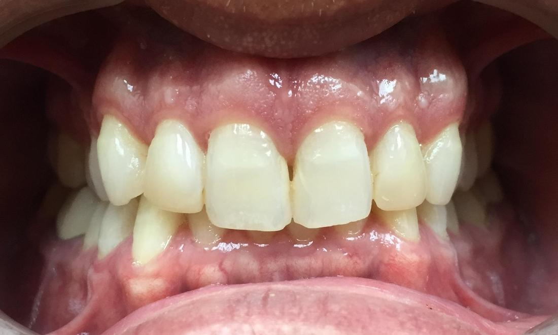 stained and yellowed teeth