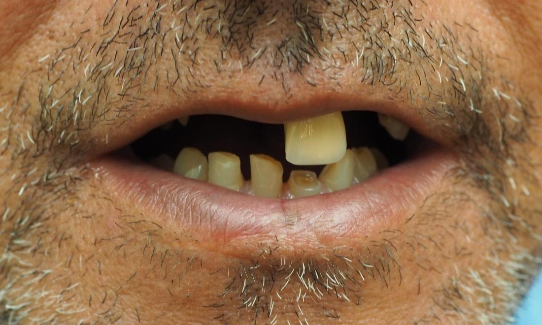 Close up of man missing top front teeth
