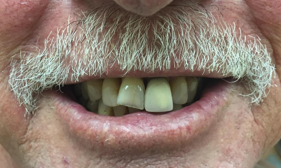 Before Photo | Dentures Royal Palm Beach FL