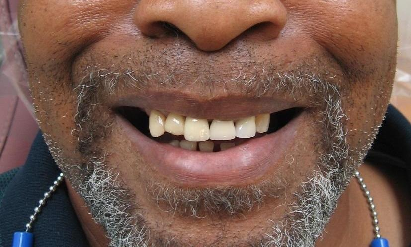 Smile before upper teeth extraction
