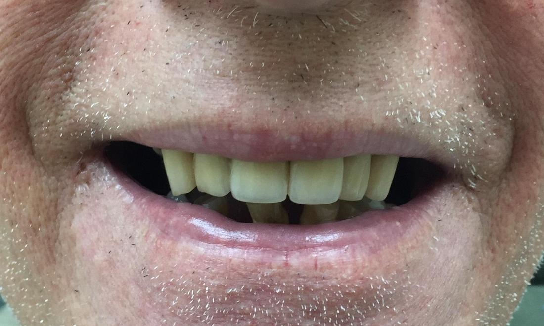 Infected front teeth