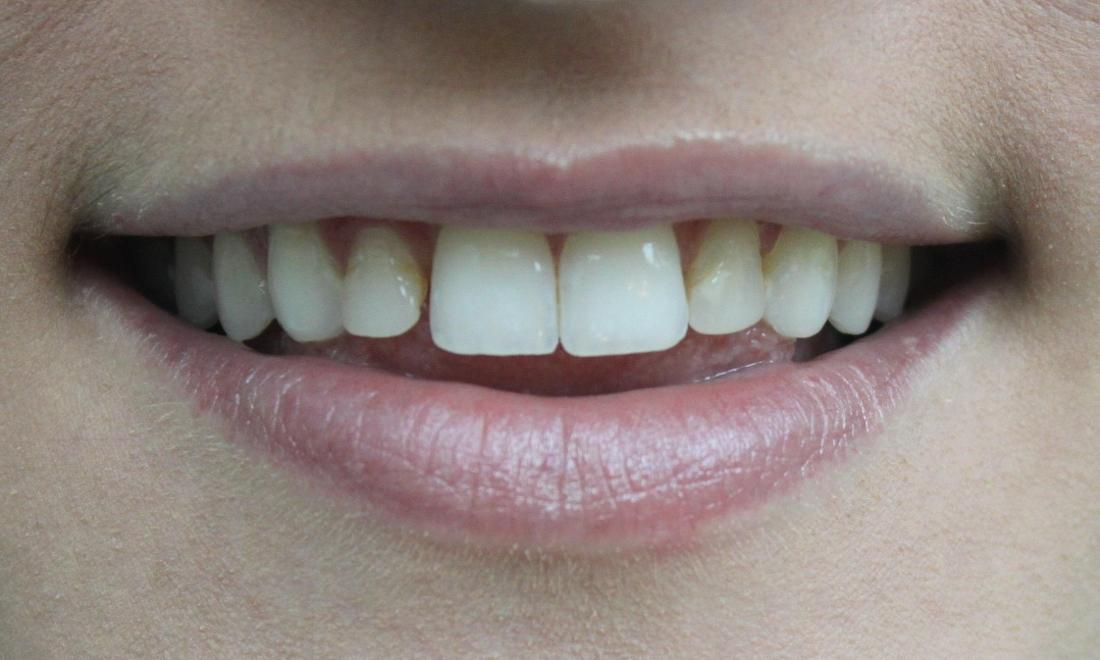 Close up of top teeth with failing bonding