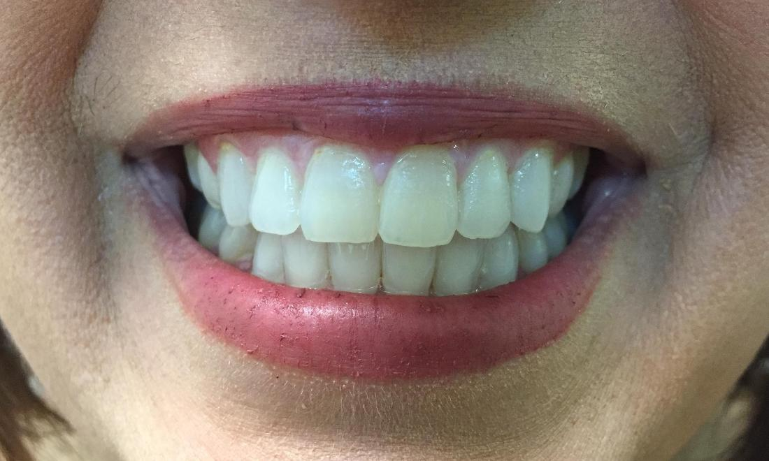 Mildly stained and yellowed teeth