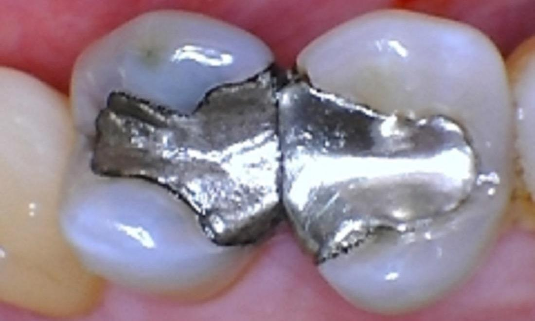 Teeth with silver fillings