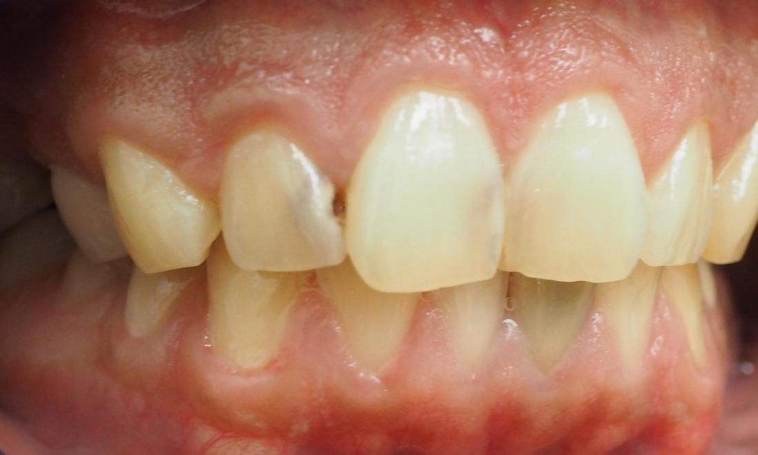Cavities on front teeth