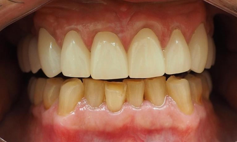 All-Porcelain-Crowns-Implants-After-Image