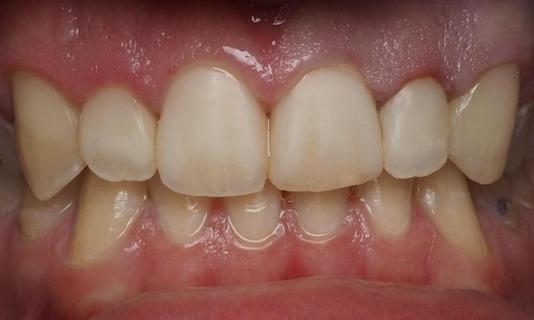 Cavities-Repaired-with-Bonding-After-Image