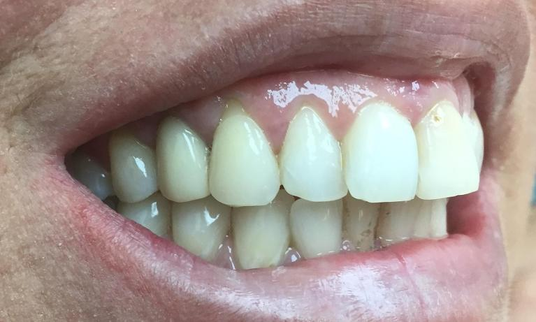 Dental-Implant-to-Replace-Missing-Tooth-After-Image