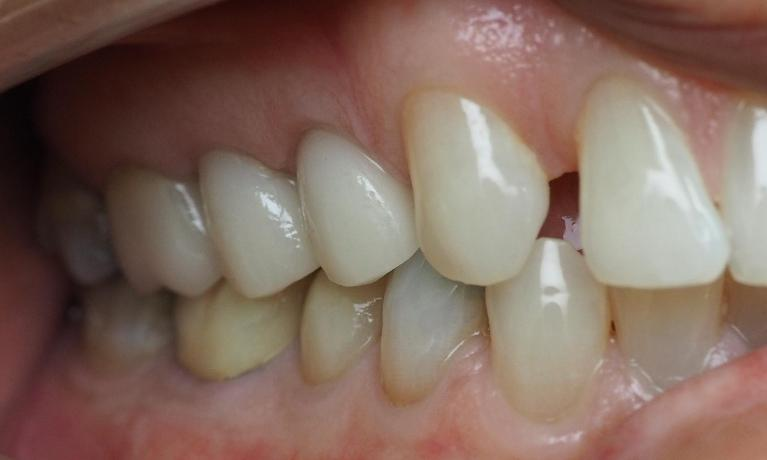 Porcelain-Crowns-to-Replace-Old-Fillings-After-Image