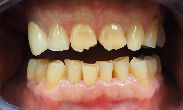 All-Porcelain-Crowns-Implants-Before-Image