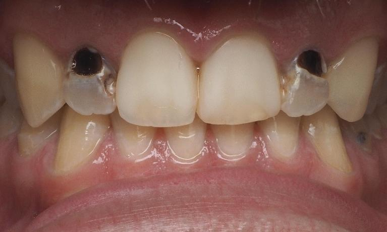 Cavities-Repaired-with-Bonding-Before-Image