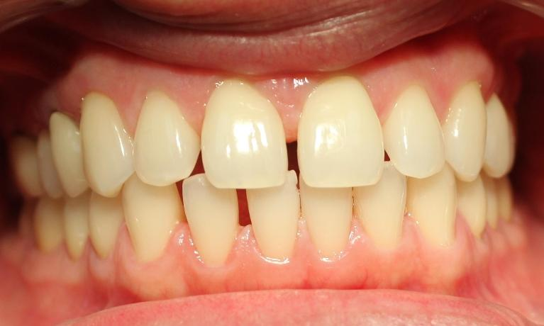 Clear-Correct-Orthodontics-and-Teeth-Whitening-Before-Image