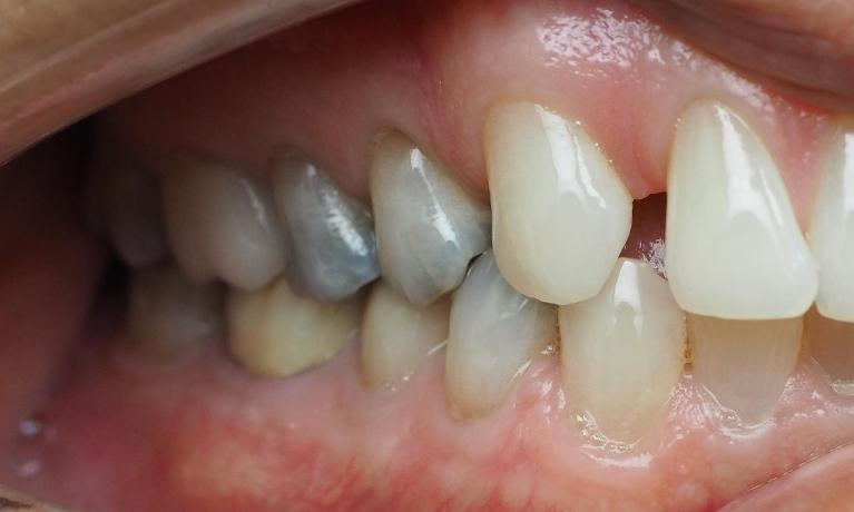 Porcelain-Crowns-to-Replace-Old-Fillings-Before-Image