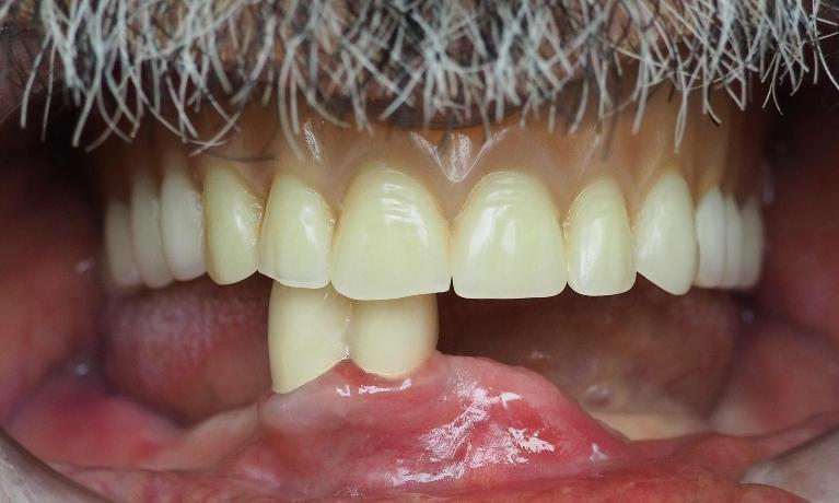 Denture-Before-Image